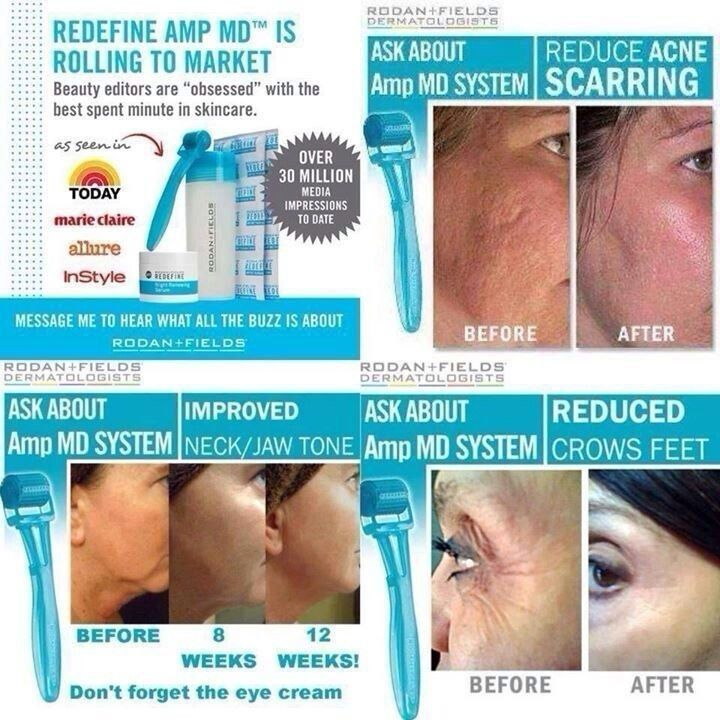 rodan and fields amp roller reviews