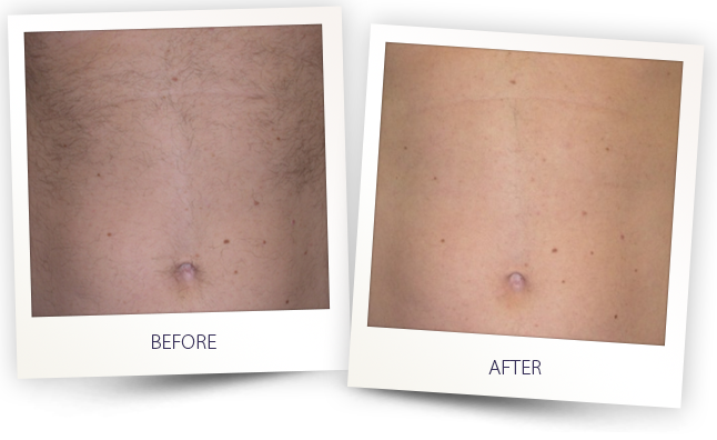 alma laser reviews for hair removal