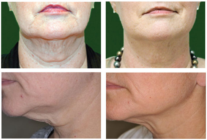gentleyag laser skin tightening reviews