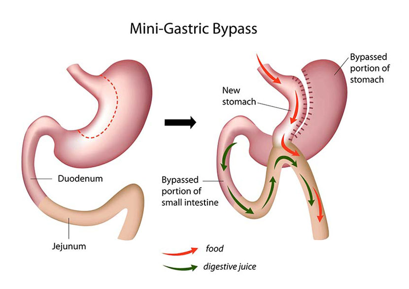 gastric bypass no surgery reviews