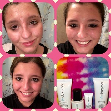 mary kay acne treatment reviews