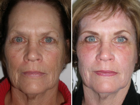 fractional co2 laser resurfacing reviews