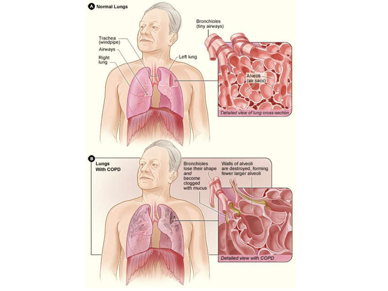 chronic obstructive pulmonary disease a concise review