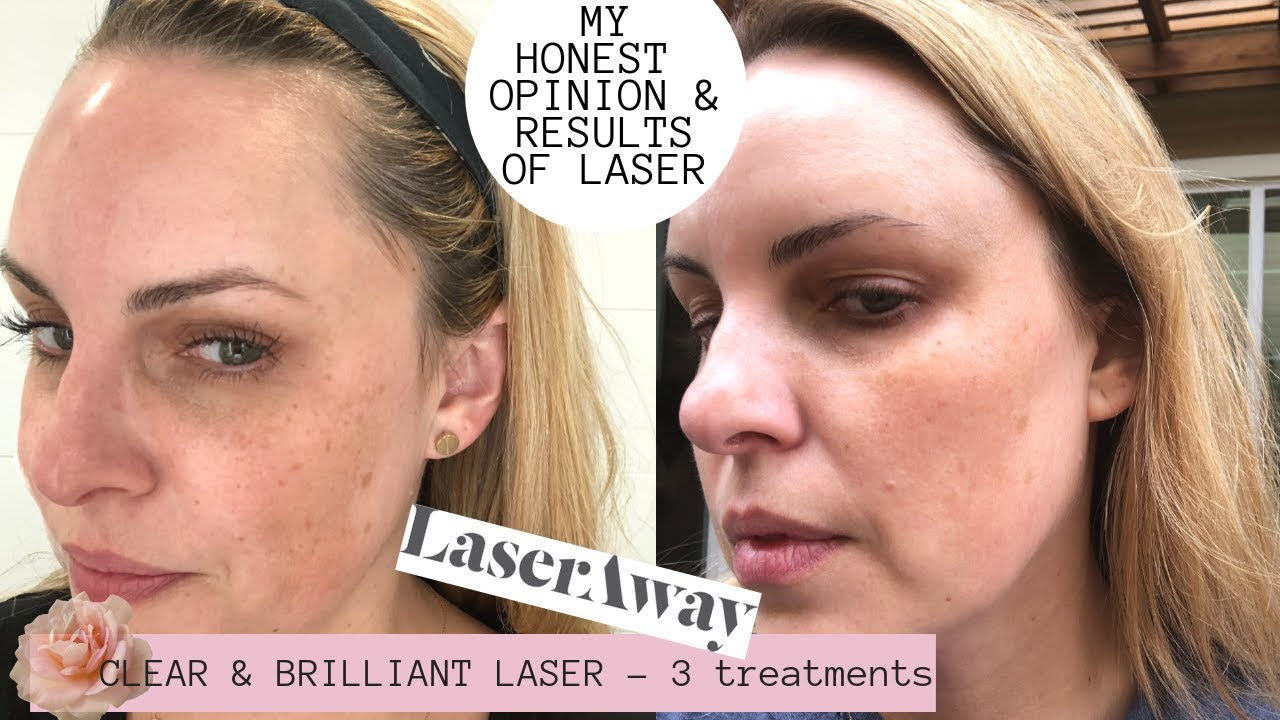 clear and bright laser reviews