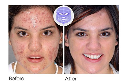 led light therapy facial reviews