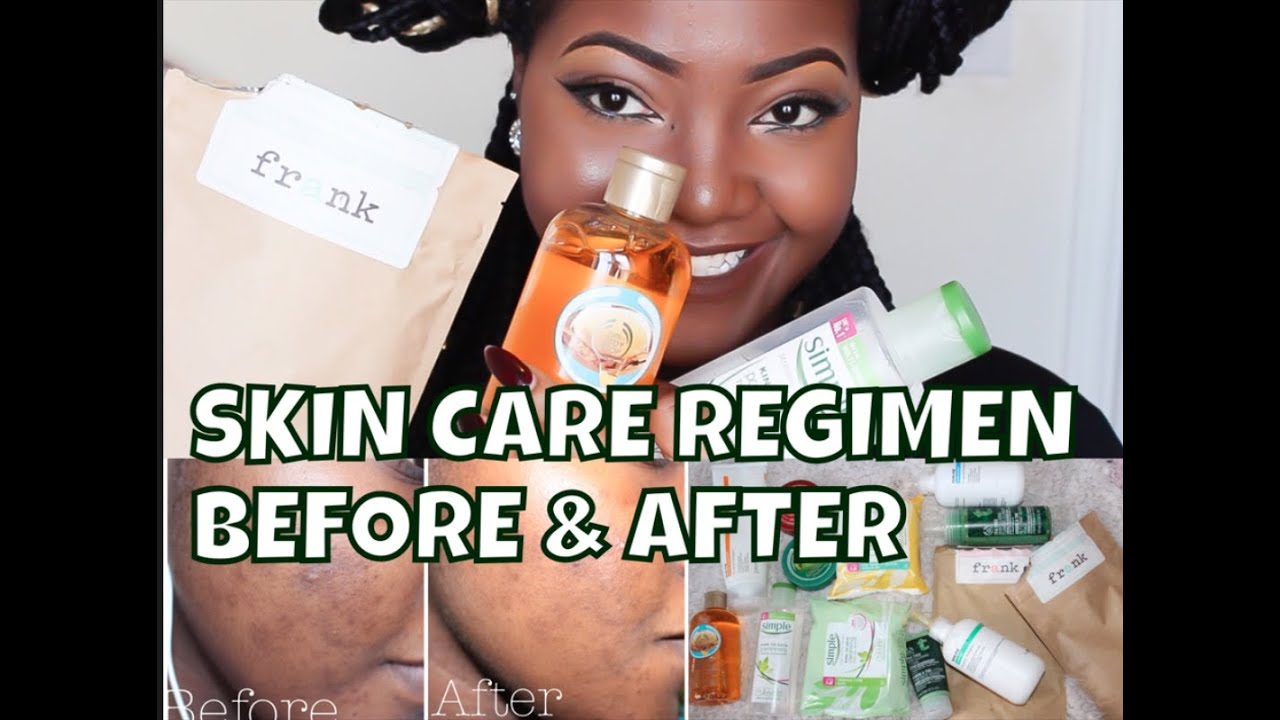 exposed skin care reviews acne org