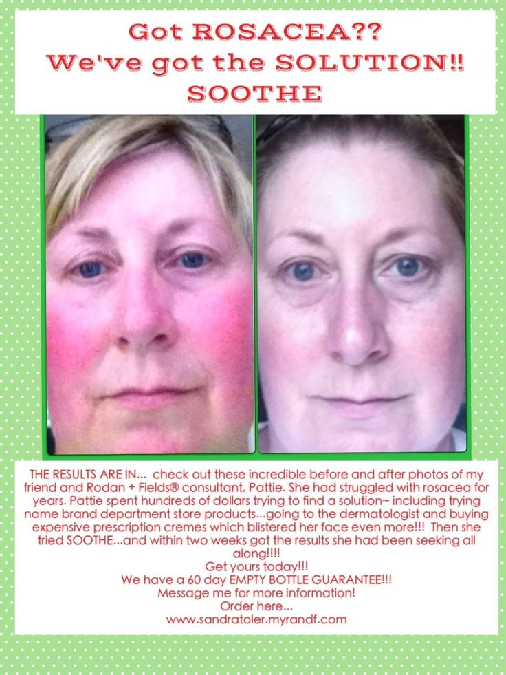 rodan and fields acne care reviews