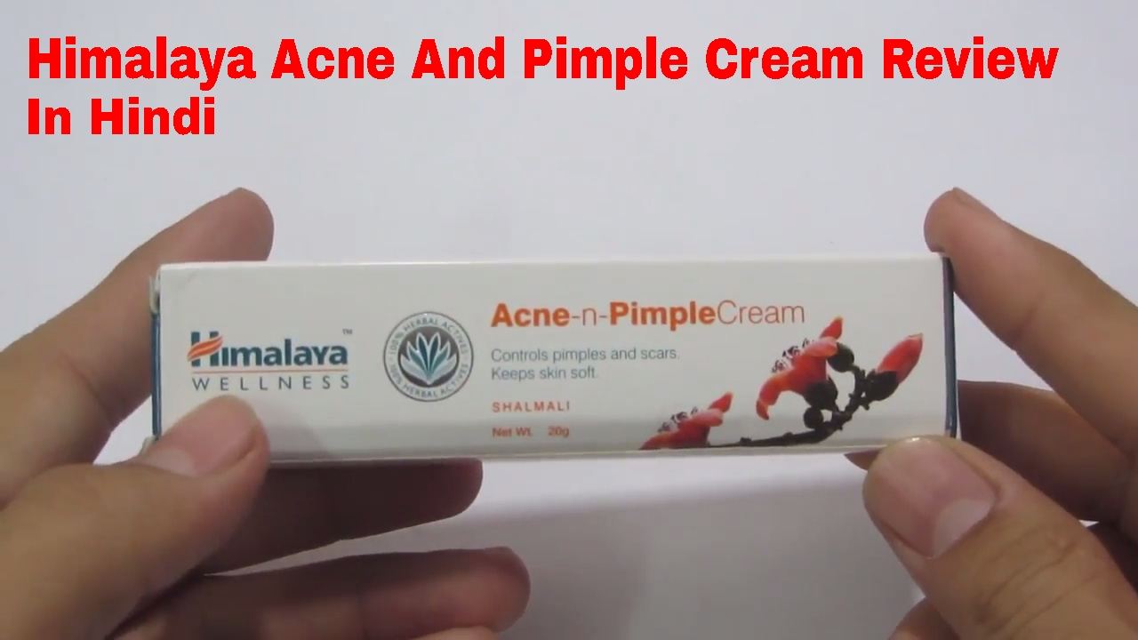 face to face cream for pimple review