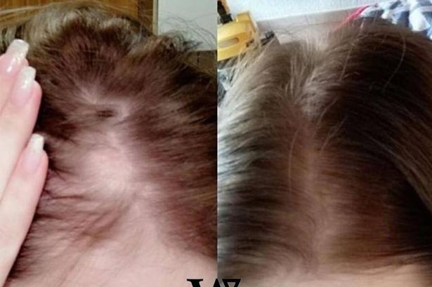 hair growth shampoo and conditioner reviews