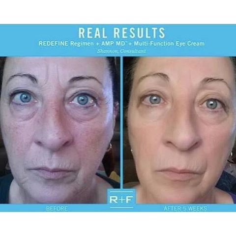 rodan and fields redefine reviews 2017